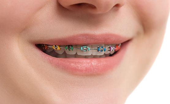 clear-braces-stalo-economou-orthodontic-center