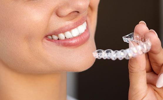 invisalign-stalo-economou-orthodontic-center